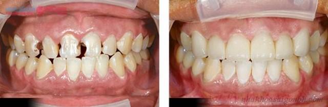 bọc răng sứ thẩm mỹ có cần lấy tủy không