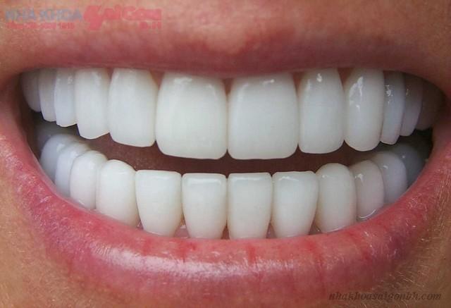 Bọc răng sứ thẩm mỹ giá bao nhiêu tiền?