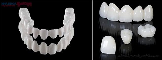 bọc răng sứ thẩm mỹ giá bao nhiêu tiền