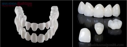 Có nên trồng răng toàn sứ không?