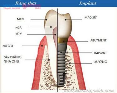cấy ghép implant - bí quyết phục hồi răng đã mất
