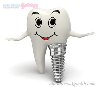 Cắm ghép implant ngay khi nhổ răng