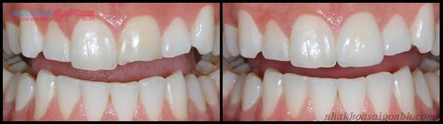 Chi phí trám răng bị mẻ hết bao nhiêu tiền?