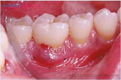 có nên cấy ghép răng implant