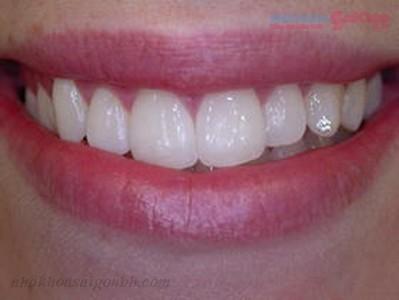 Đính đá vào răng có gây hại hay không?