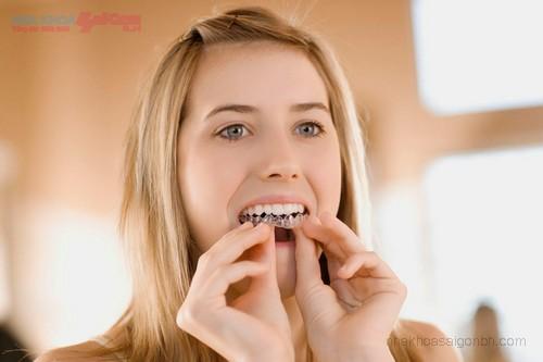 Hướng dẫn cách đeo khay chỉnh nha niềng răng không mắc cài