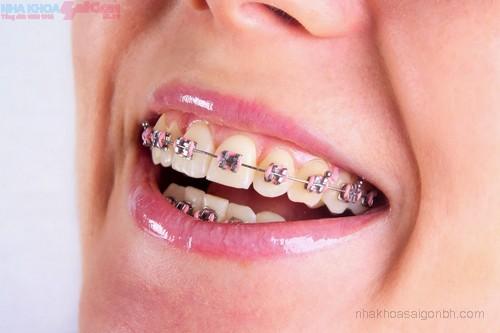 Phương pháp chỉnh nha niềng răng mắc cài bằng inox