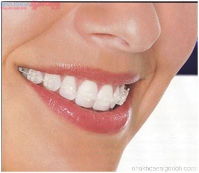 Niềng răng - chỉnh nha thẩm mỹ cho người lớn