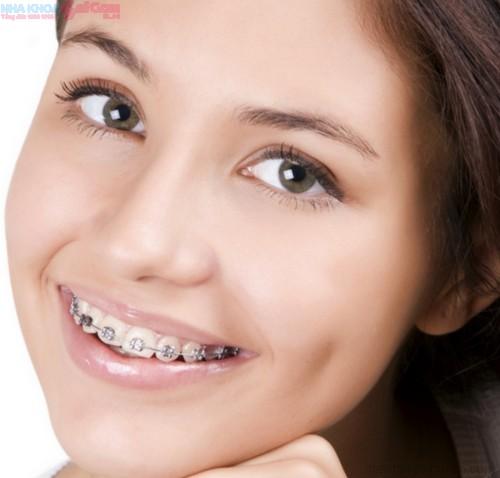 Niềng răng chỉnh nha ở đâu tốt và rẻ nhất?