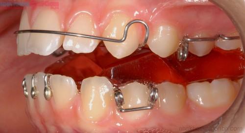 Phương pháp niềng răng tháo lắp bạn đã biết chưa?