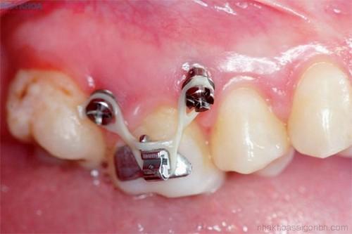Phương pháp niềng răng với mini implant