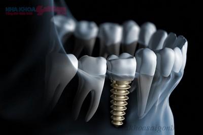 quy trình cấy ghép implant diễn ra như thế nào
