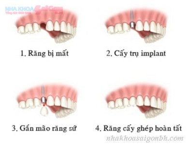 quy-trinh-cay-ghep-implant-dien-ra-nhu-the-nao2