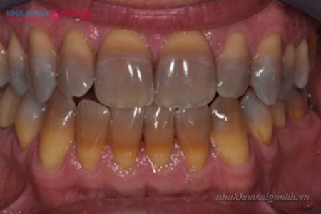 răng bị nhiễm màu tetra nặng không thể tẩy trắng