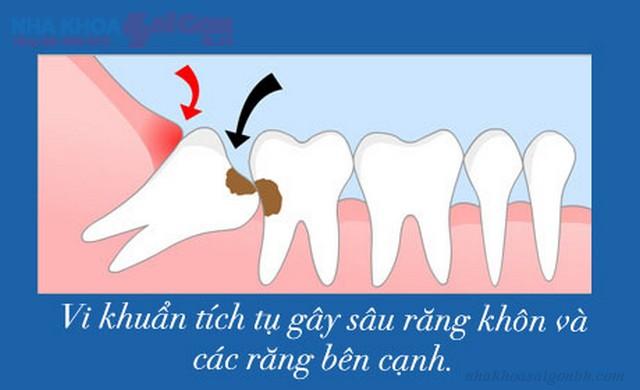 Răng khôn bị sâu có trám được không?
