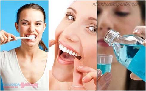 Chế độ chăm sóc răng sau cấy ghép implant như thế nào?