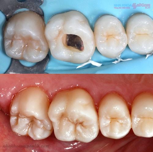 Răng sữa bị sâu có nên trám lại không?