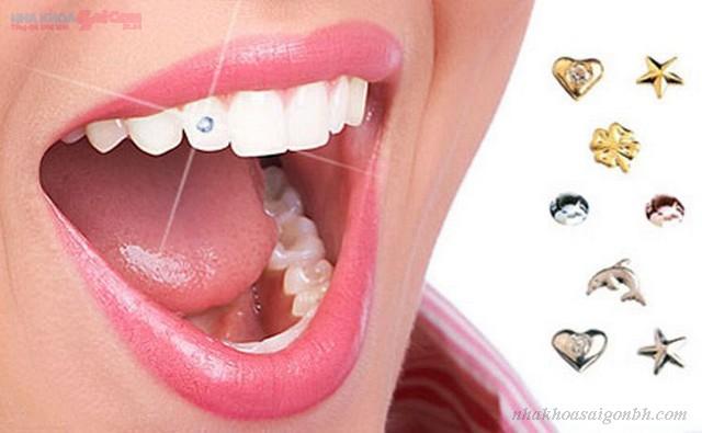 Sở hữu ngay chiếc răng đính đá trong 15 phút