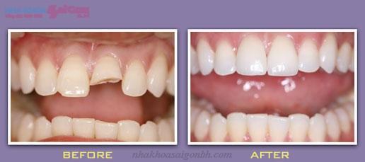 Bọc răng sứ mang tính thẩm mỹ cao