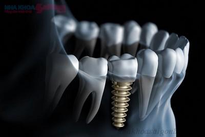 tai-sao-phai-chon-rang-implant-thay-the-rang-gia11