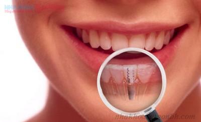 răng implant luôn cố định trong miệng