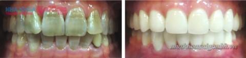 tẩy trắng răng bị nhiễm tetra