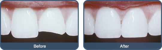 Bọc sứ phục hồi răng cửa bị mẻ an toàn hiệu quả