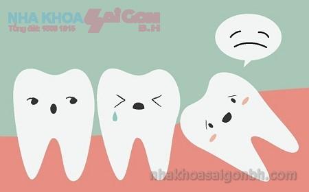 Vì sao nên nhổ răng số 8 mọc lệch mọc ngầm?