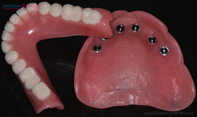 Cấy ghép implant cho trường hợp mất răng toàn hàm