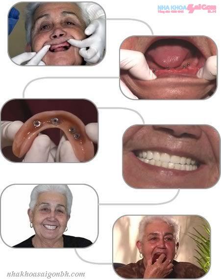 Trồng răng implant cho người cao tuổi