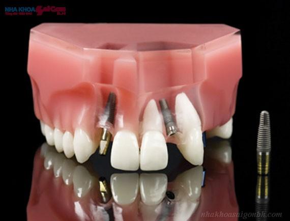 Trồng răng implant thời cổ đại và hiện tại