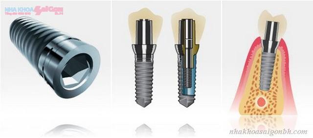 Cấy ghép implant có gây nguy hiểm không?