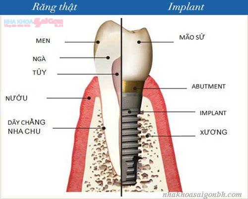 Cấy ghép implant có giá bao nhiêu tiền?