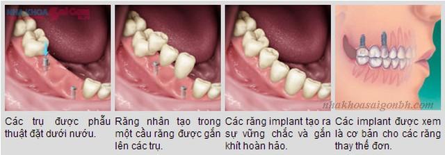 cấy ghép implant tồn tại được bao lâu