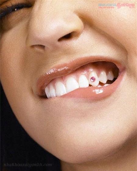 Dịch vụ đính đá vào răng giá rẻ