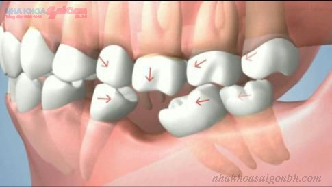 Hậu quả của việc mất răng không được cấy ghép implant