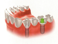Phục hồi răng đã mất với phương pháp trồng răng