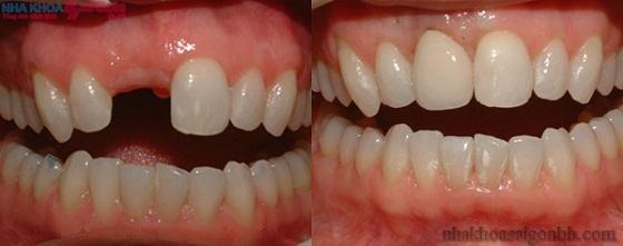 Phục hồi răng cửa đã mất bằng cấy ghép implant