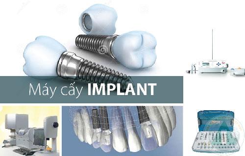 4 yếu tố quyết định sự thành công của cấy ghép implant