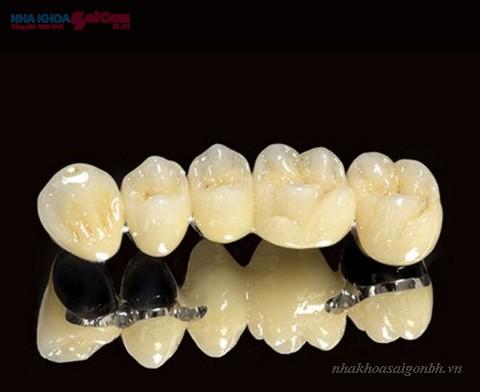 Nên chọn bọc răng sứ loại nào là tốt nhất?