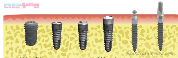 2 loại cấy ghép implant phổ biến nhất