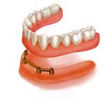 Trồng răng implant khác với trồng răng sứ ở điểm nào?