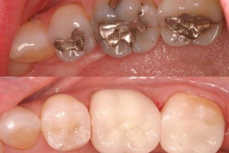 thay đổi miếng trám để tẩy trắng răng