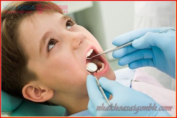 Có nên nhổ răng sữa cho bé tại nhà không?