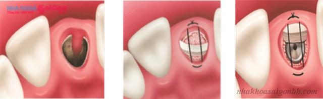 Ghép xương nhân tạo khi cấy ghép implant