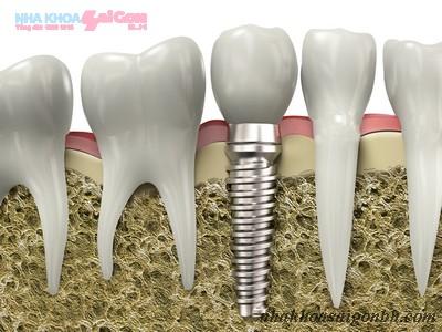 Khái niệm cấy ghép implant là gì?
