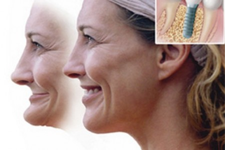 Những lợi ích không ngờ khi cấy ghép implant