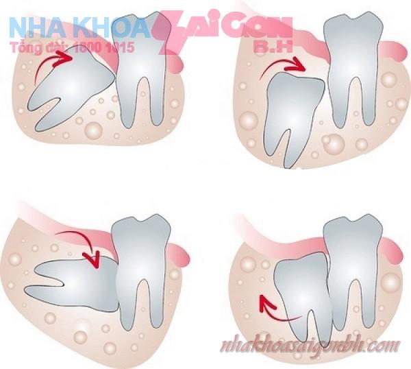 Nhổ răng số 8 mọc lệch chấm dứt cơn đau răng khó chịu