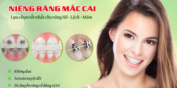 Chi phí chỉnh nha niềng răng bao nhiêu tiền?