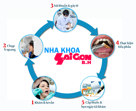 Quy trình nhổ răng tại phòng khám nha khoa Sài Gòn B.H